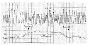 beispielhafte polygraphische Ableitung von Atmung und Pulsfrequenz unter Musikeinfluss